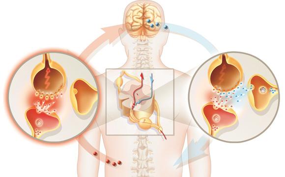 Neuropathic Pain (Neuralgia)
